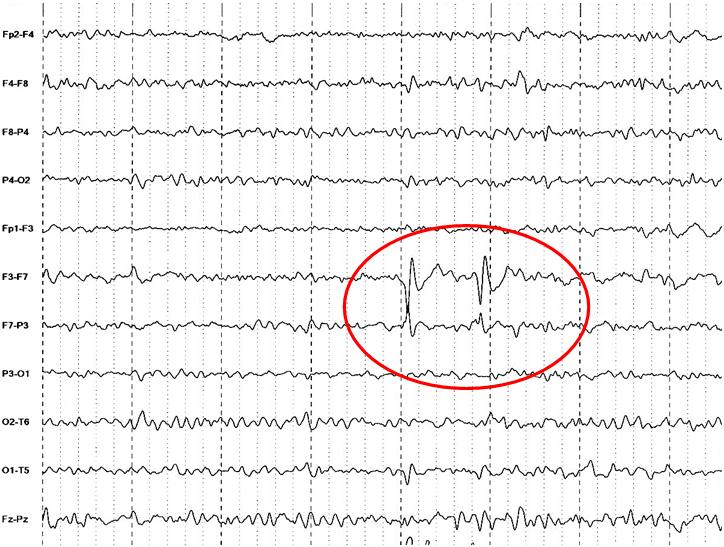Rolando Epilepsie Und Konzentrationsschwäche
